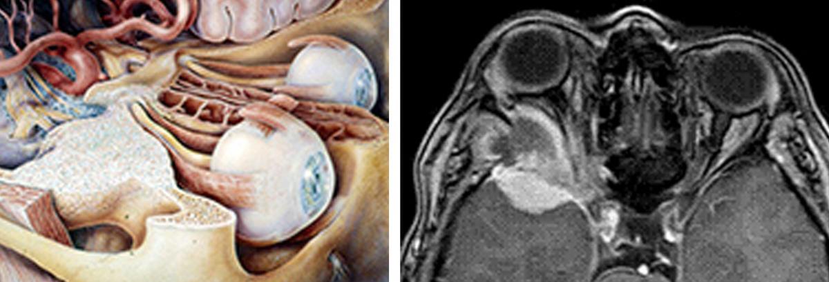 Orbitachirurgie und Tumoren mit Sehnervenkompression ...